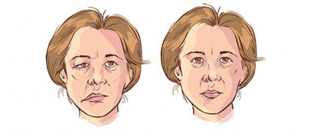الوجه قبل وبعد الإصابة بشلل بل